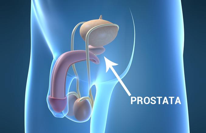 Prostata